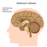 What is Parkinson's Disease, anyway?